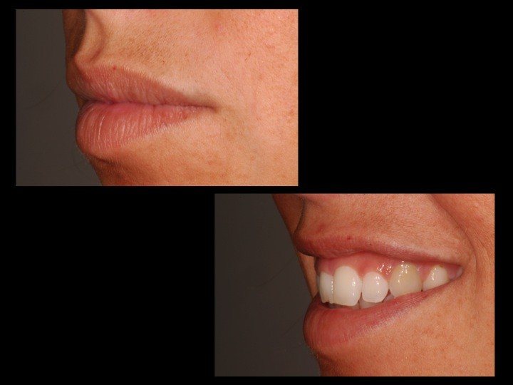caso_periodoncia_1b_clinica dental barcelona SYP