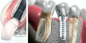 Dental Implants - Dentist in Barcelona  Sanz&Pancko