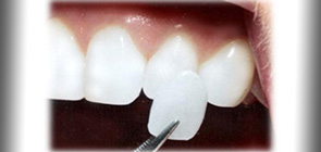 Treatments - Dentist in Barcelona Sanz&Pancko