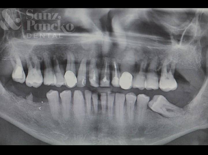 implante_caso_2c