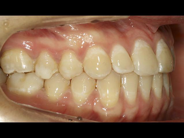 casos-ortodoncia1-1