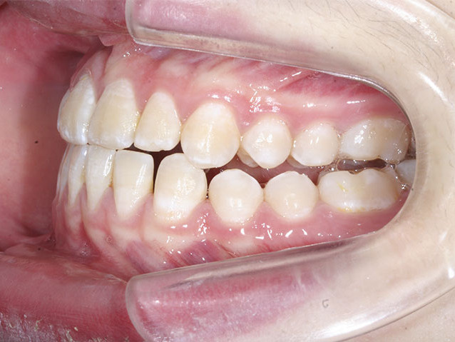 casos-ortodoncia1-8